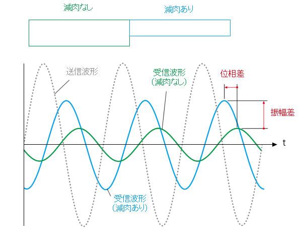 Bracelet/E-Pit検査の診断原理